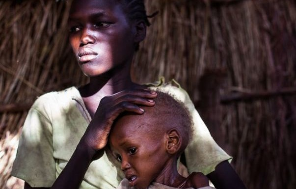 A girl holds her malnourished brother after hiking for days with her family to get to a refugee camp in South Sudan for food and treatment (Trevor Snapp/Pulitzer Center)