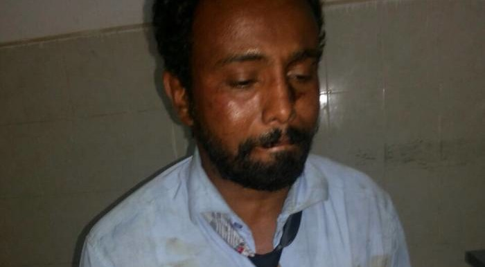 Lawyer Mohamed Ibrahim after being assaulted by security officers in Khartoum on 30 March 2015