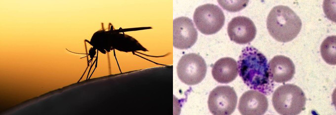 The female Anopheles mosquito (r), carrier of the Malaria parasite (l) Plasmodium Vivax (File photo)