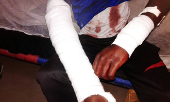 One of the injured of Nierteti locality (RD)