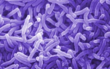 Cholera bacteria (File photo)