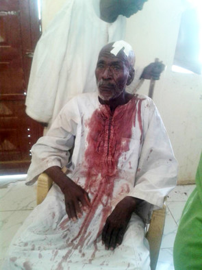 Sheikh Hasan Hamid (75) is treated for his injuries after an attack by militiamen on returnees in Saraf Omra